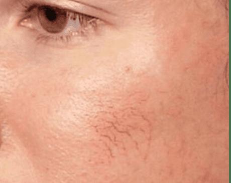 Facial_Veins